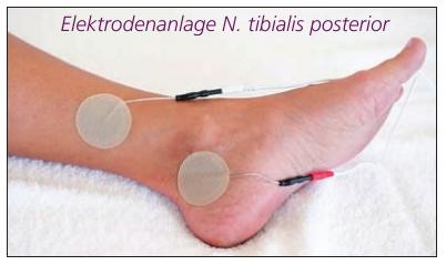 Stimulation des N tibialis posterior mit Klebeelektroden